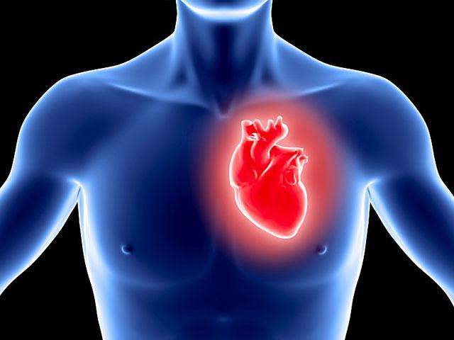 Mycocardial-Infarction-fi