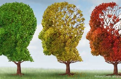 Aging-Brain